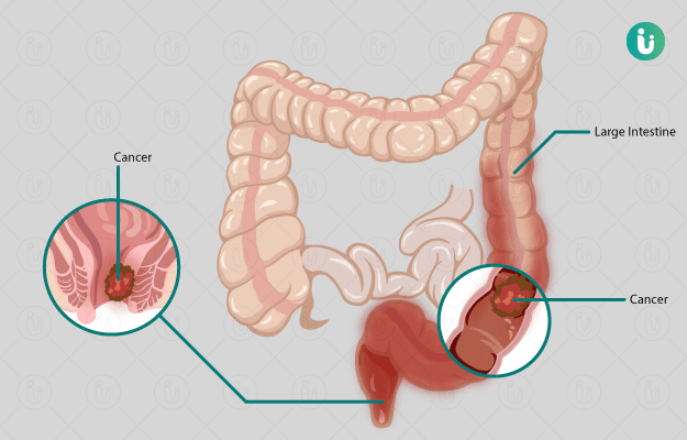 Colorectal Cancer Symptoms Causes Treatment Medicine Prevention Diagnosis