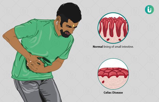 Celiac Disease: symptoms, causes, treatment, medicine, prevention, diagnosis
