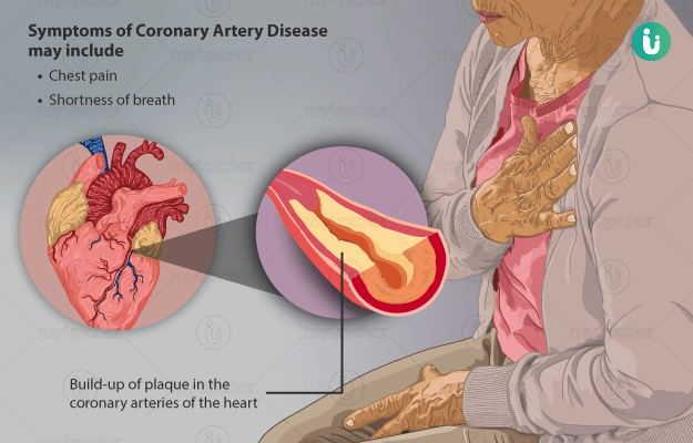 coronary artery disease causes and treatment