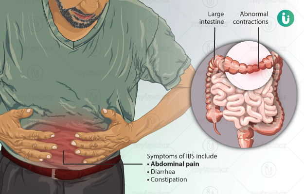 Irritable Bowel Syndrome Ibs Symptoms Causes Treatment Medicine Prevention Diagnosis