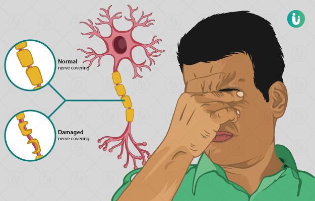 मल्टीपल स्केलेरोसिस