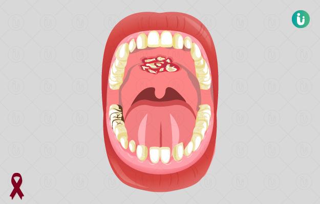 मुंह के कैंसर के लक्षण, कारण, इलाज, दवा