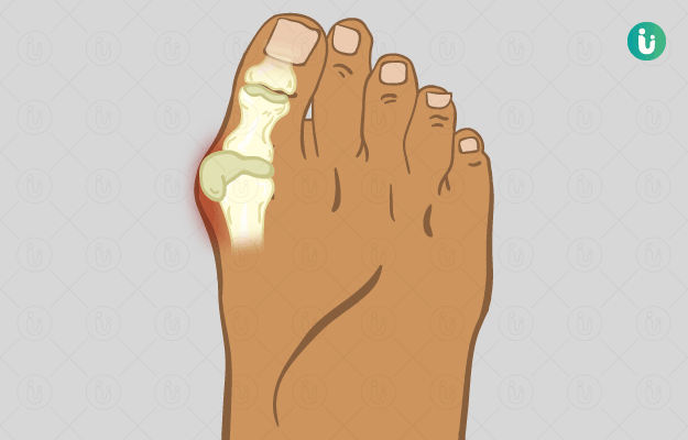 पैर की हड्डी बढ़ना