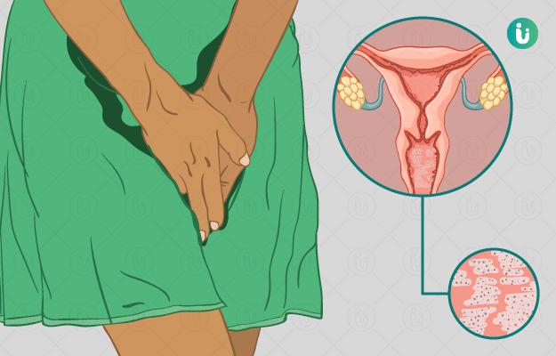 योनि में खमीर संक्रमण