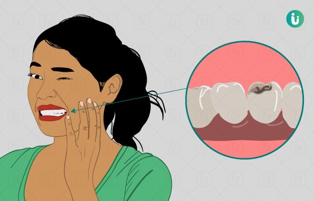 दांतों में कीड़े (कैविटी) के