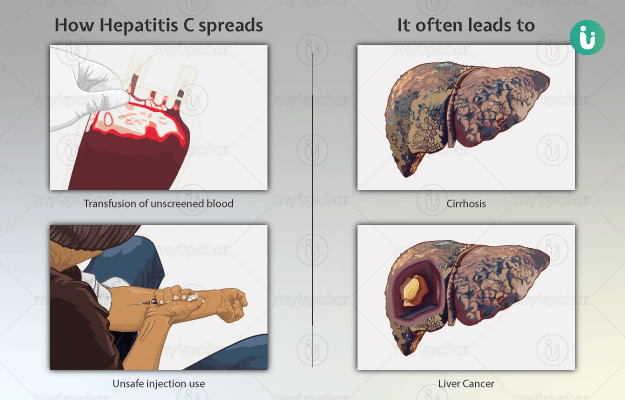 हेपेटायटिस सी