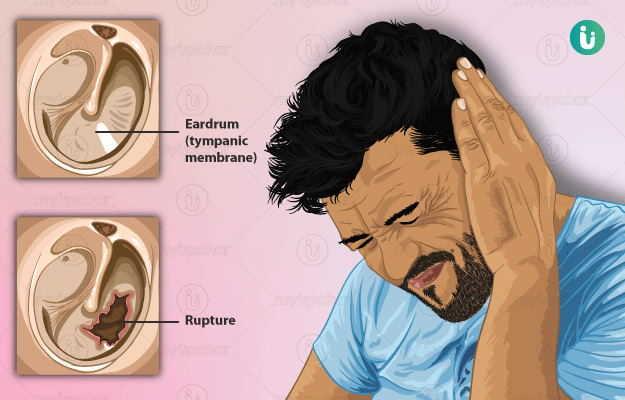 कान के पर्दे में छेद