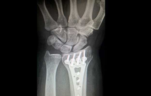 कलाई की हड्डी का टूटना