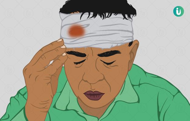 सिर की चोट