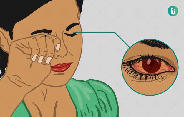 आंखों में एलर्जी