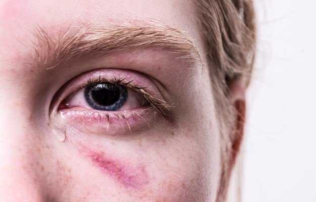 Fractured Eye Socket Symptoms Causes Treatment Medicine Prevention Diagnosis