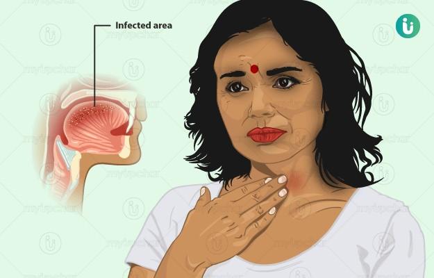 தொண்டை நோய்த்தொற்று
