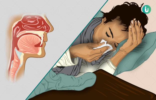 ऊपरी श्वसन तंत्र संक्रमण