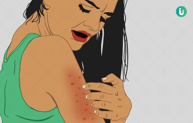 Skin Disorders and Diseases
