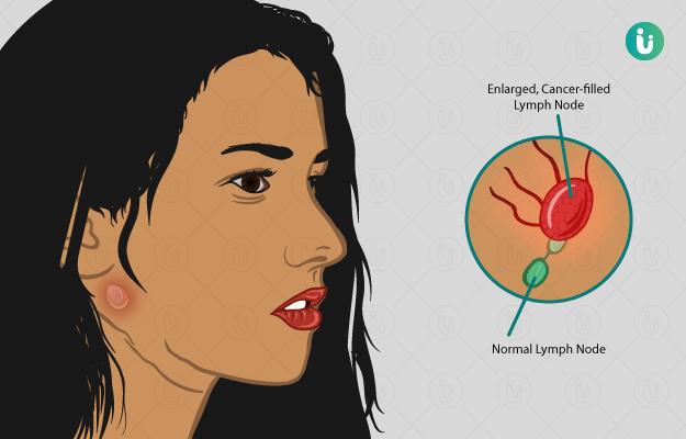 Lymphoma: symptoms, causes, treatment, medicine, prevention