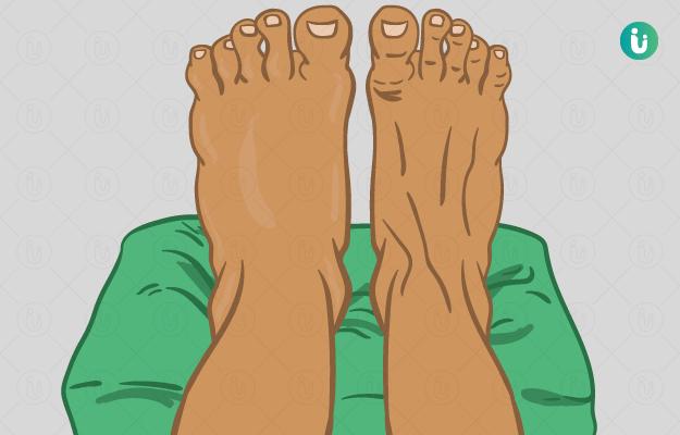 पाय सुजणे