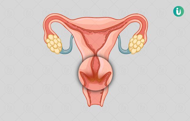 गर्भाशय ग्रीवाशोथ