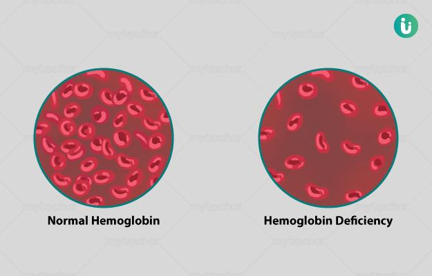 हीमोग्लोबिन की कमी