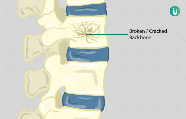 Spine Fracture Symptoms Causes Treatment Medicine Prevention