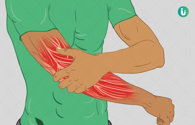 मांसपेशियों की कमजोरी
