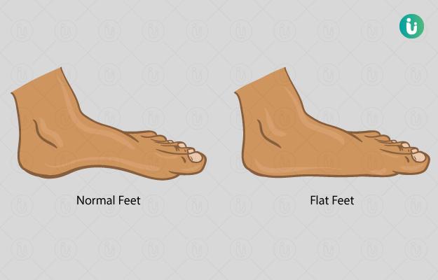 सपाट पैर के लक्षण, कारण, इलाज, दवा