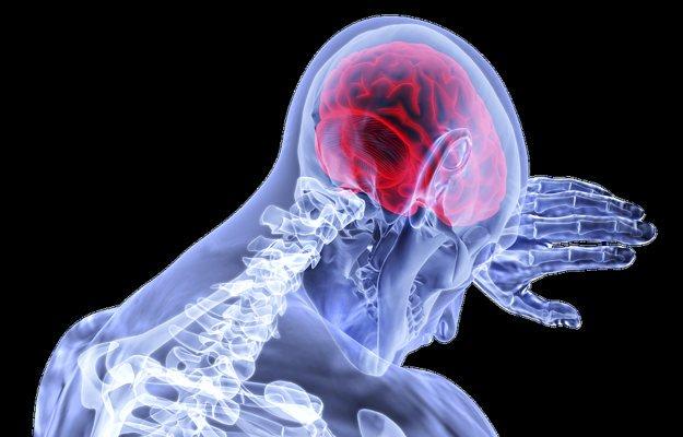 मस्तिष्क धमनीविस्फार