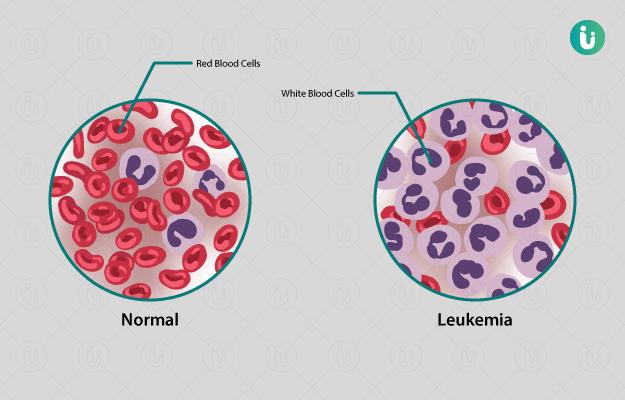 रक्ताचा कर्करोग