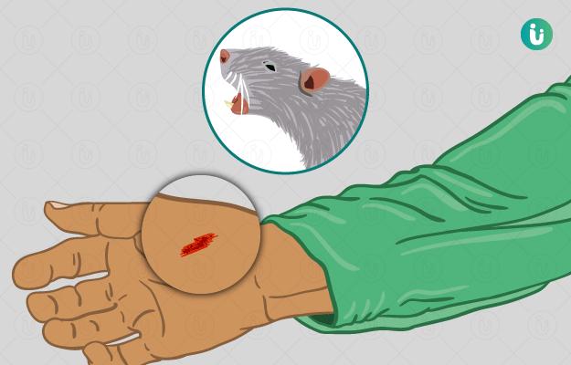 चूहे का काटना
