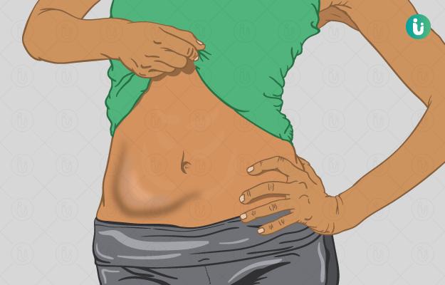 पेट में गांठ के लक्षण, कारण, इलाज