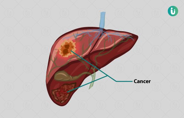 यक्रुताचा कर्करोग