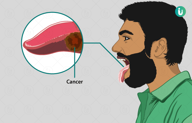 जीभ का कैंसर