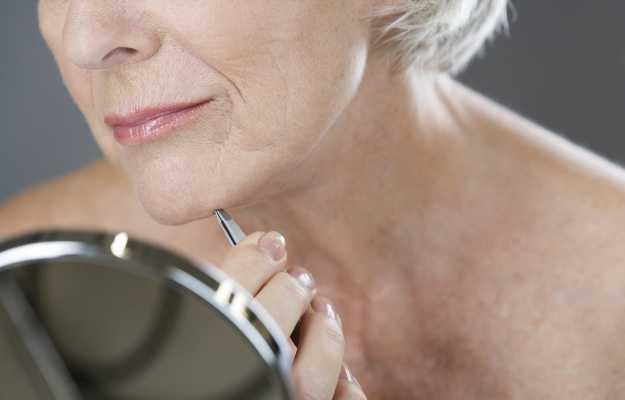 Excessive facial hair in women