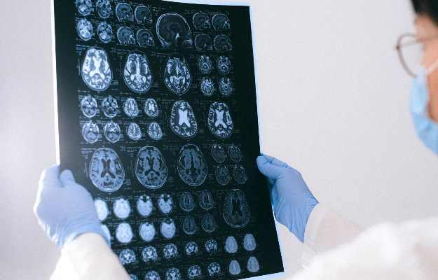मस्तिष्क में सूजन
