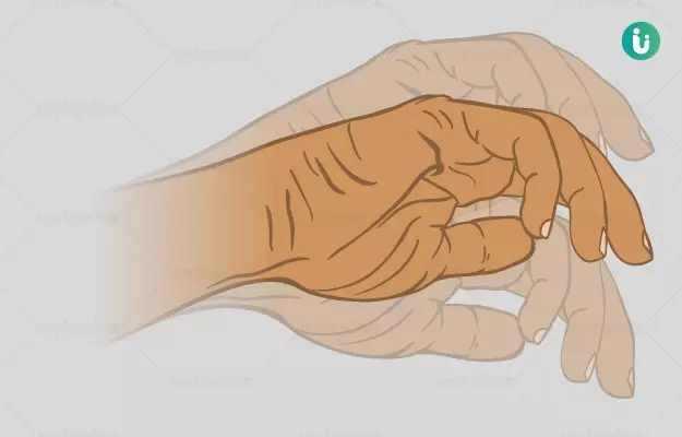 हाथ सुन्न होना